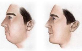 brada i jagodice Poliklinika Aesthete zagreb - Plastična kirurgija - Estetski zahvati i tretmani kože, lica i tijela