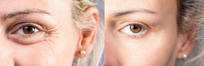 obrve-2-Poliklinika Aesthete zagreb - Plastična kirurgija - Estetski zahvati i tretmani kože, lica i tijela